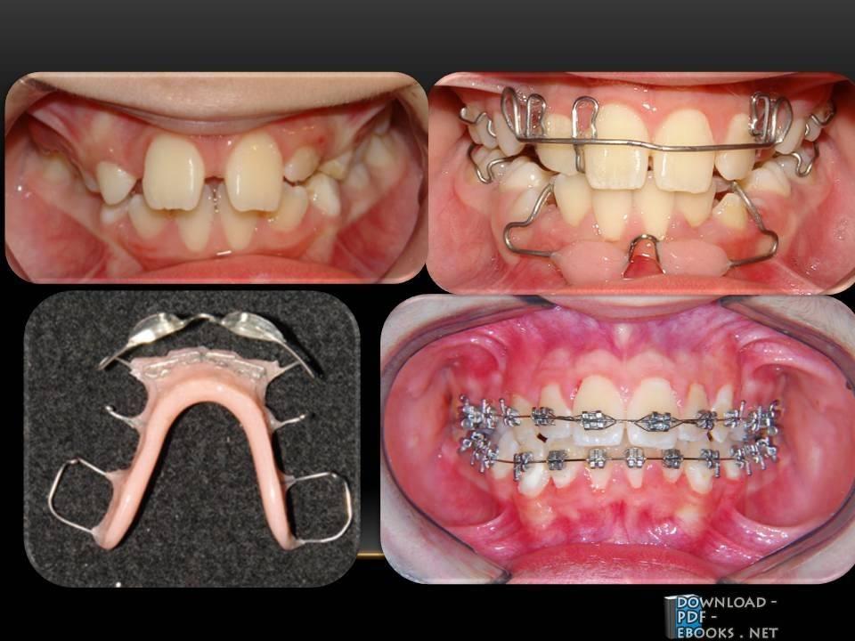Contemporary Orthodontics 4th Edition Pdf