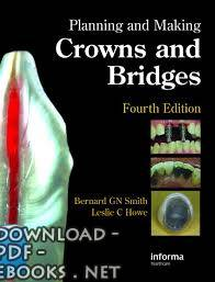 كتاب Planning and Making Crowns and Bridges