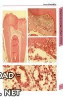 قراءة و تحميل كتاب Pocket Atlas of Endodontics PDF
