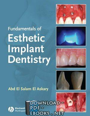 قراءة و تحميل كتاب FUNDAMENTALS OF ESTHETIC IMPLANT DENTISTRY PDF