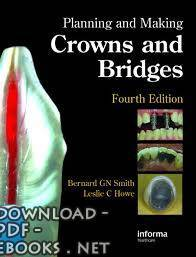 قراءة و تحميل كتاب Planning and Making Crowns and Bridges PDF