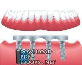 قراءة و تحميل كتاب restorative dentistry pdf PDF