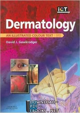 قراءة و تحميل كتاب Dermatology_An_Illustrated_Colour_Text PDF